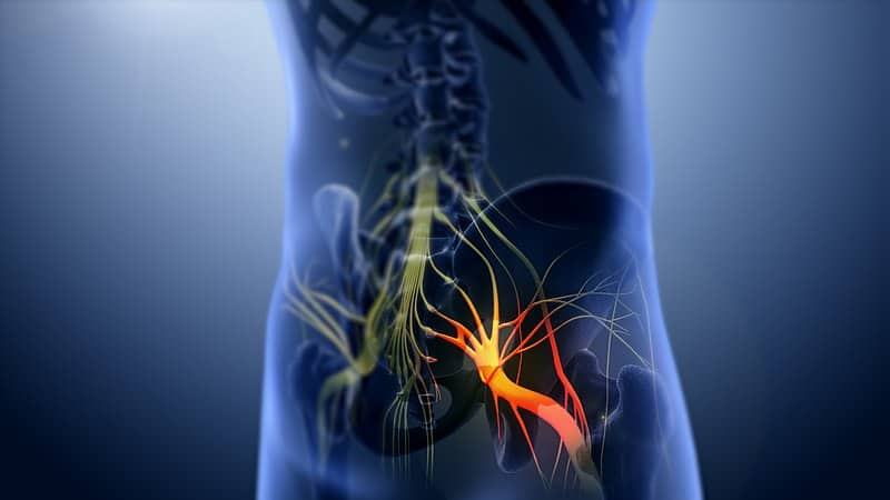What is Sciatica nerve pain - How To Sit Comfortably With Sciatica Nerve Pain - ChairPicks